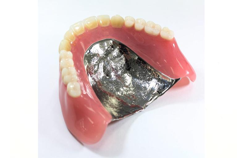 金属でできた入れ歯